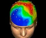 mapeo-cerebral1